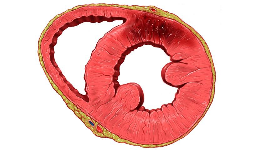 Продукты питания при сердечных заболеваниях и в период восстановления