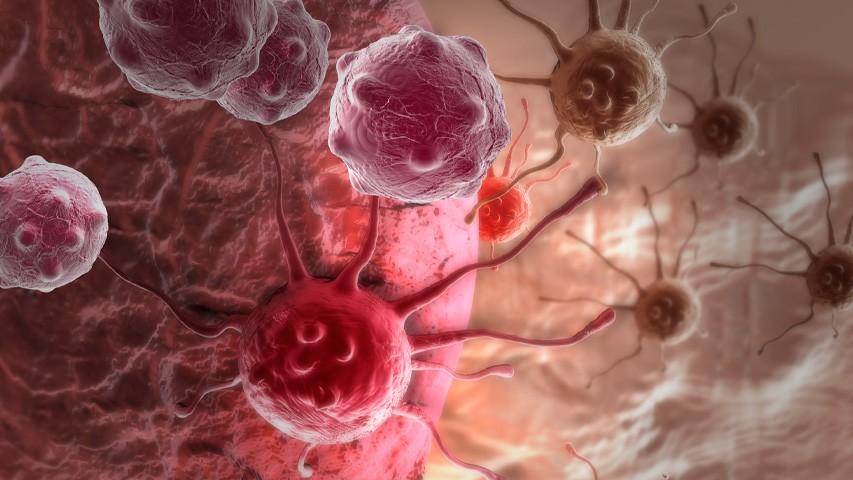 Питание при раке кишечника: что вызывает рак, противораковые продукты, что можно есть при опухоли, правила питания при онкологии, меню, рецепты