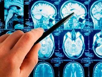 Лечение астроцитомы головного мозга