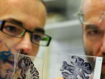 Кистозно-солидная опухоль головного мозга