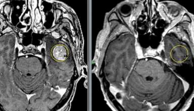 Метастазы в головной мозгМетастазы в головной мозг