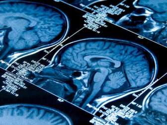 Нейроцитома головного мозга