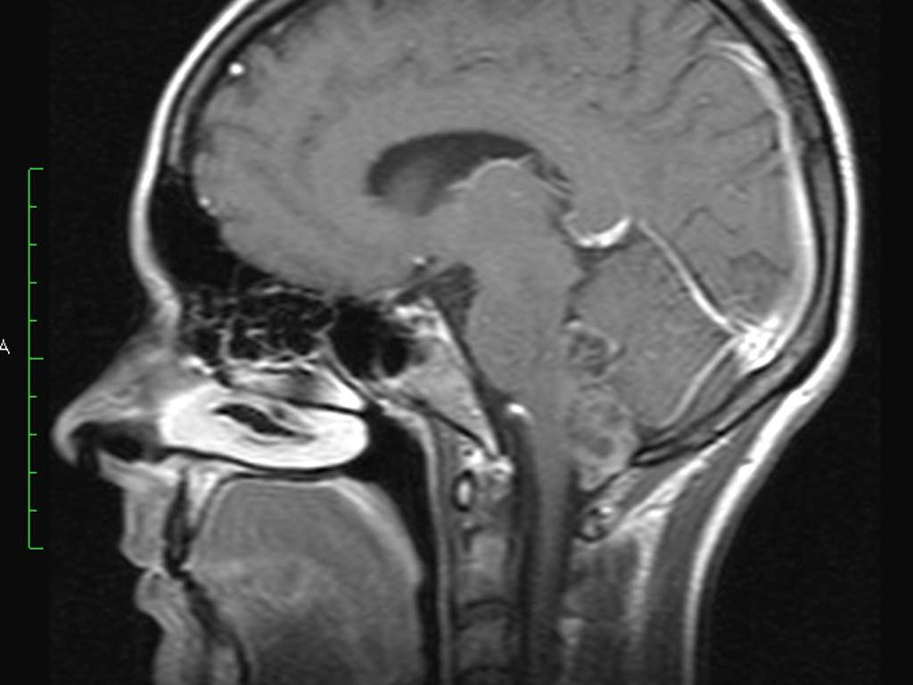 Опухоль 4 желудочка головного мозга